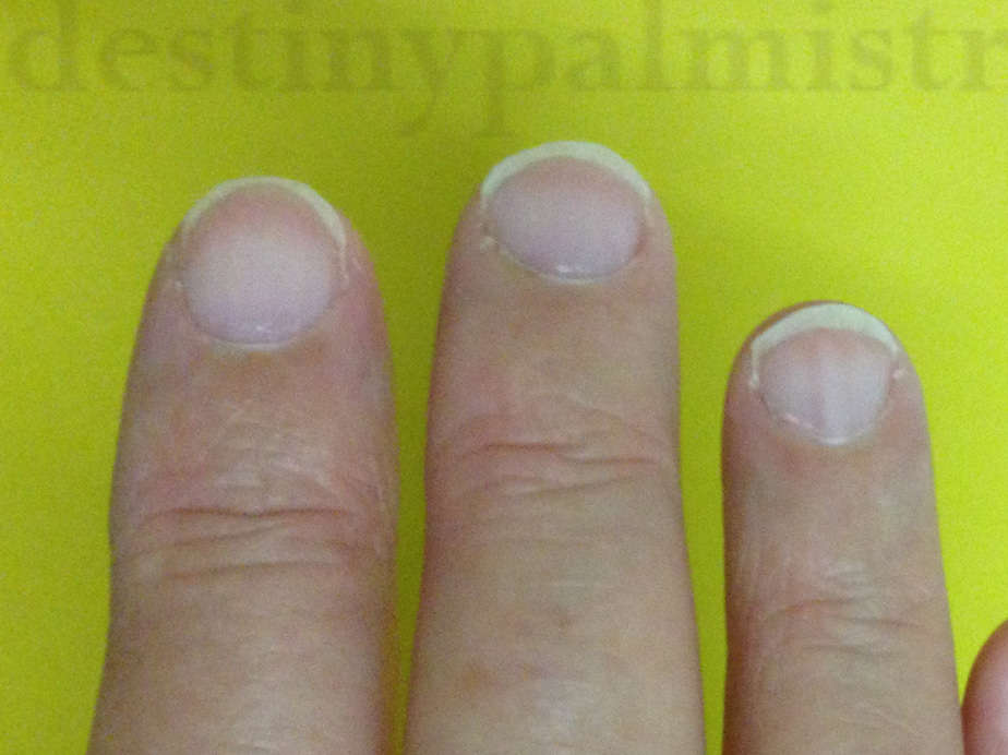 White Fingernails and Other Health Warnings - Destiny Palmistry