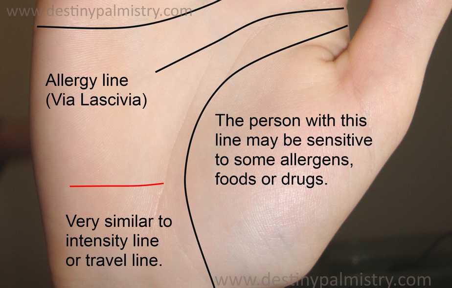 allergy line, poison line, intensity line, palmistry lines