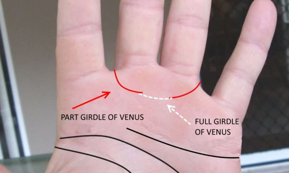 girdle of venus, meaning of girdle of venus, the best palm reader in the world, who is top palm reader in Australia