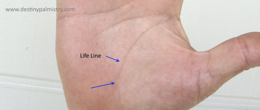 life line types, split life line, life line health warning
