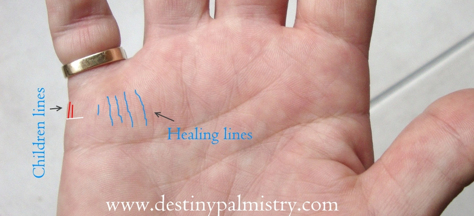 healing lines, children lines, child line on palm, medical stigmata lines, best palm reader in the world