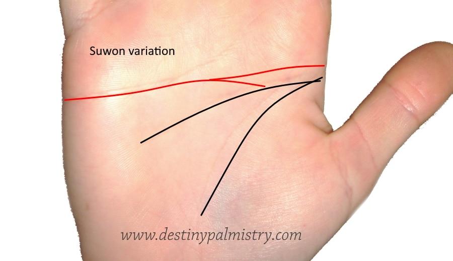 suwon variation