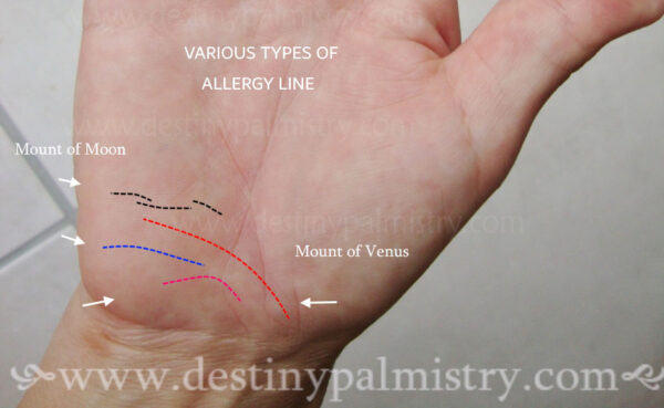 types of allergy lines