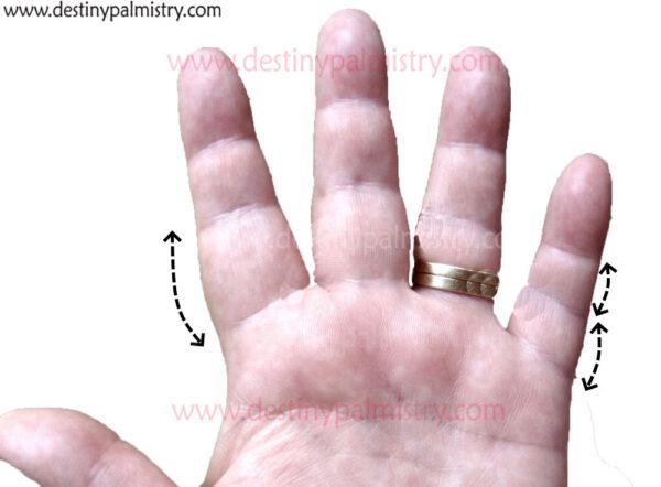 thick base finger phalanges