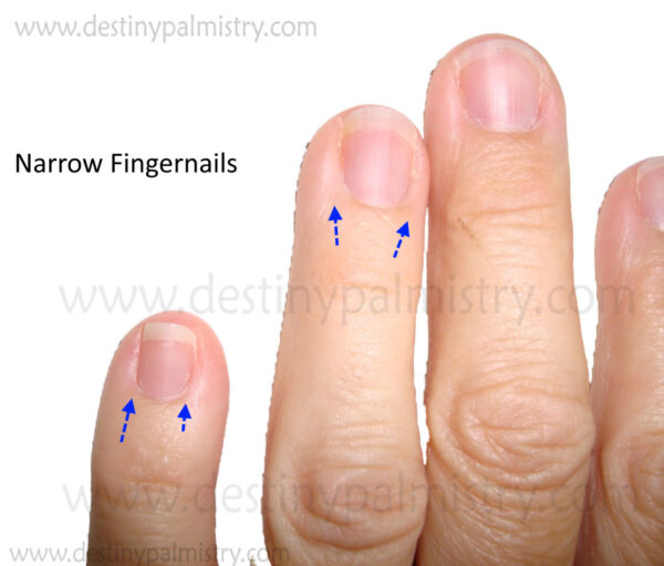 narrow fingernail