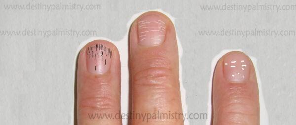 black lines on the fingernails. white spots on nails.
